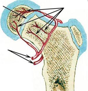 Behandlung der osteochondropathie der brustwirbelsäule